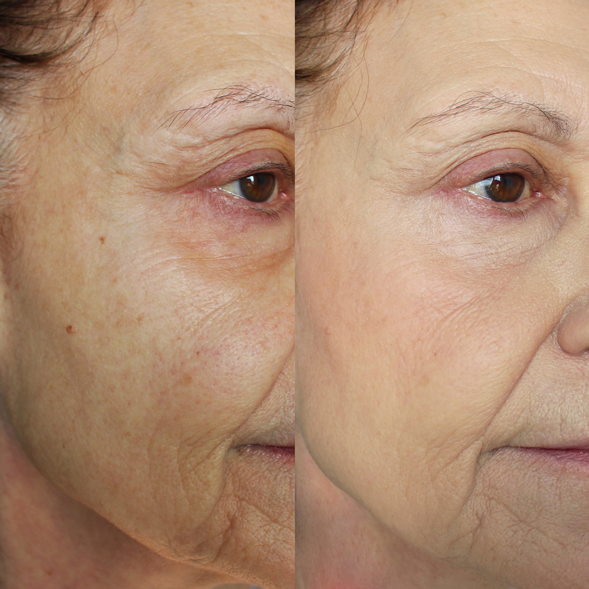 Prima e dopo l'applicazione del fondotinta Neve Cosmetics su pelle matura